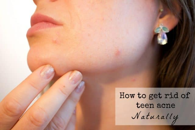 how to get rid of acne naturally